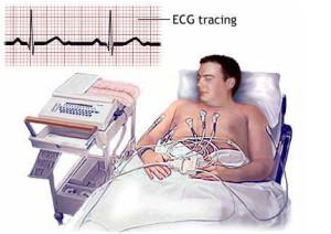Patient ECG